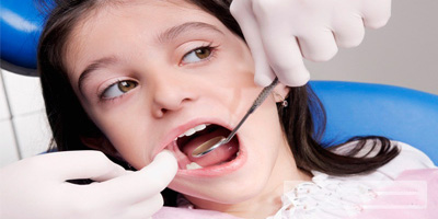 窝沟封闭可以预防龋齿吗