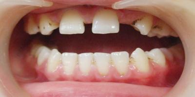 补牙越早越好吗
