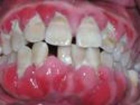 牙龈炎的症状