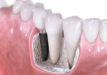 春天牙科[官网]-成都牙科|||