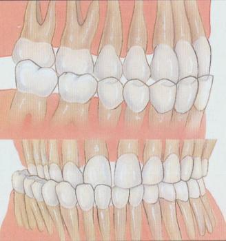 成都春天牙科-成都牙科