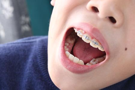 儿童牙齿矫正的费用?