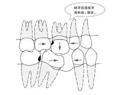 牙齿缺失的后果!看完恍然大悟!