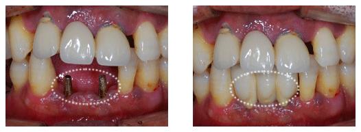 成都镶牙的费用是多少呢?成都春天牙科的医生表示,镶牙总共花多少钱是不固定的,因此镶牙费用受到患者选择镶牙医院的不同,患者口腔情况的不同,以及镶牙方式及材料的不同,因此镶牙价格是不能一概而论的,下面我们就进行具体的了解。 一、镶牙需要多少钱呢? 1、与镶牙材料有关: 镶牙的牙冠材料是影响镶牙的价格的一大因素,就目前来看,镶牙冠常用的是烤瓷牙。这种镶牙冠也是有很多的材料,有普通金属的,有贵金属的,也有全瓷的。种镶牙冠选择的材料不同,成都镶牙多少钱一颗也就不同。 2、与镶牙方式有关: 随着医疗技术发展,镶牙的方