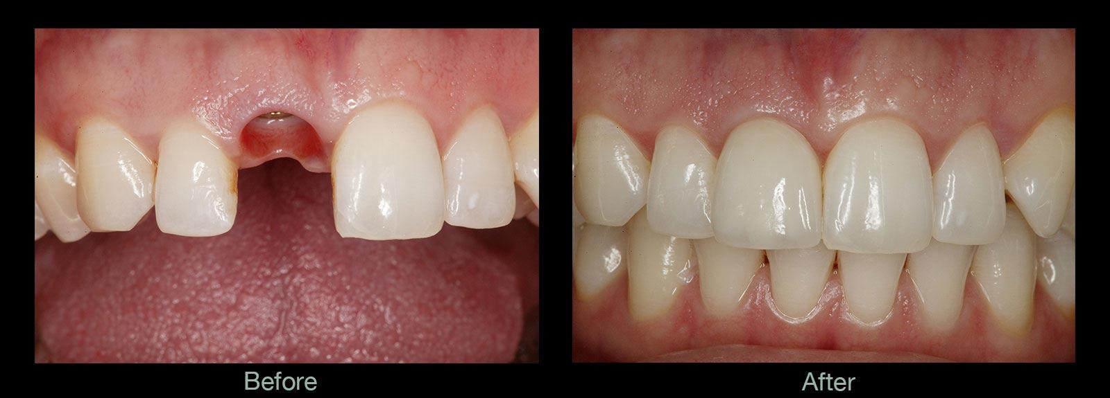 成都儿童牙齿矫正的费用?成都春天牙科的医生表示,对于儿童做牙齿矫正的价格来说,因为受到个人牙齿畸形程度,难易度,选择不同的矫正方式以及选择不同的矫正医院的影响,儿童做牙齿矫正的价格也是不固定的,具体可通过以下进行详细了解。 一、儿童做矫正的费用是多少呢? 1、与矫正难度高低有关:在牙齿矫正的过程中,矫正难度较大的患者在治疗的时间和所花的精力也相对较多,所以费用也相对较高。 2、与矫正方法和矫正器有关:患者的牙齿情况不同医生也会选择不同类型的矫正器和矫正方法,每种矫正器的价格、效果、性能等方面都会存在差异。