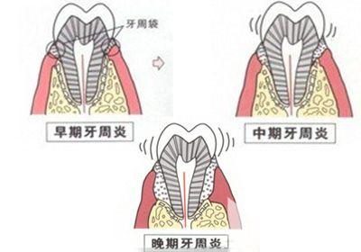 牙周与心脏的关系你知道吗?