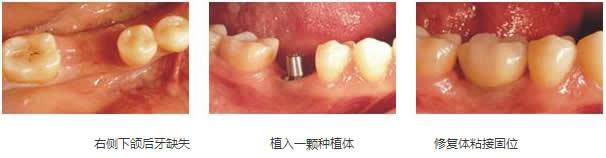 牙齿因为事故问题,缺失了磨牙,现在吃东西很不方便,有时候还会疼