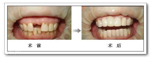 种植牙修复的价格?种植牙技术已经在临床医学上成功应用了好几十年,而且种植技术也达到了前所未有的高度,其技术被公认为是口腔修复好的选择,种植牙的价格是人们关心的话题,下面我们就跟随成都春天牙科的医生进行具体的了解。 一、影响种植牙修复的价格因素有哪些呢? 1、主要取决于种植牙材料的选择。国产的种植牙材料因科学技术水平有限,整体上质量良莠不齐,因此很多医院都转而依赖国外进口材料,国外材料在质量上都有过硬的技术,各方面性能来说也比较好,所以价格也是比较固定,一直降不下来。 2、医疗水平的高低。种植牙医疗水平以及