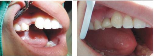 成都牙齿缺失种植案例