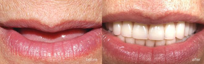成都牙齿种植案例