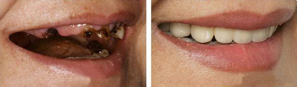 缺牙牙齿种植案例