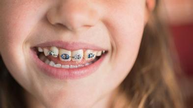 儿童牙齿畸形,儿童牙齿矫正