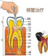牙齿根管治疗有哪些作用 击退口腔病